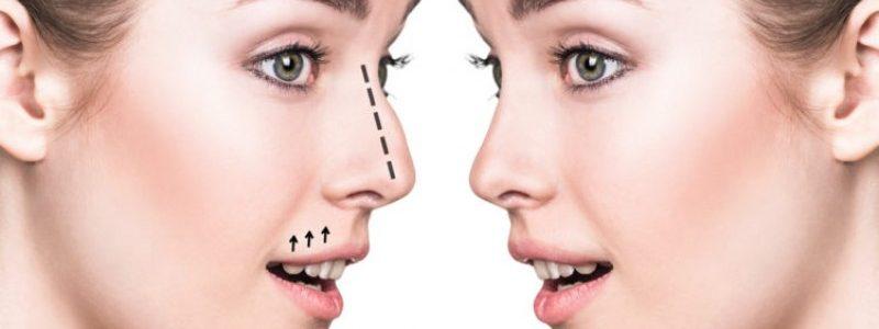 افتادگی بینی چگونه تشخیص داده می شود؟