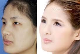Face (3)