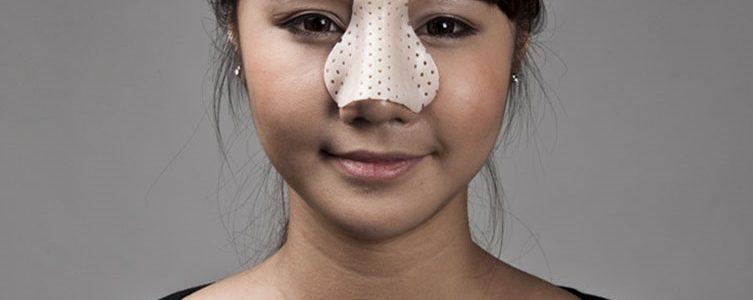 تا زمانی که گچ بینی شما برداشته نشده است باید از موارد زیر اجتناب کنید