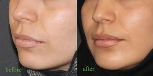 Lip (1)