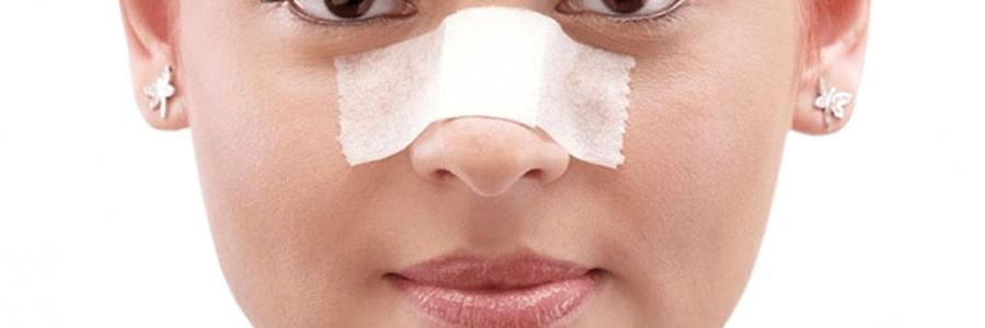 التعامل مع كدمات وتورم بعد جراحة الأنف