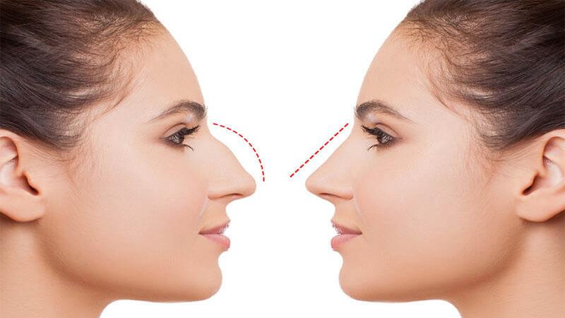 جراح بینی اصفهان   تاثیرات افزایش وکاهش وزن بر رینوپلاستی