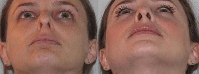 اختلال تنگی مجرای بینی