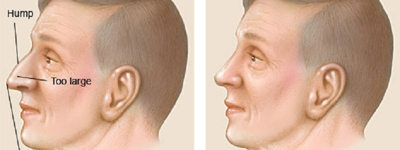 Men's nose surgery and review of men's models