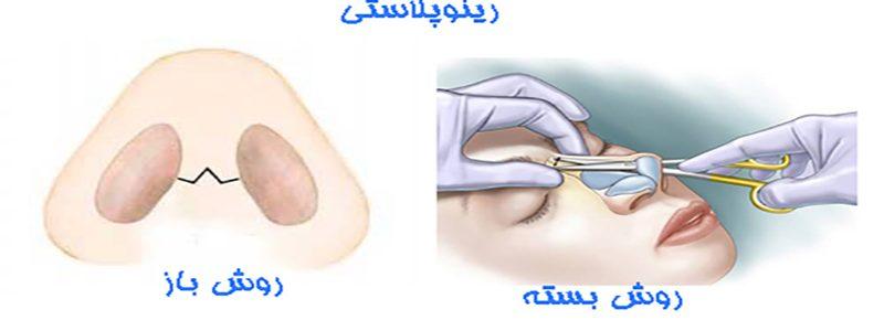 جراحی نوک بینی به روش باز یا بسته