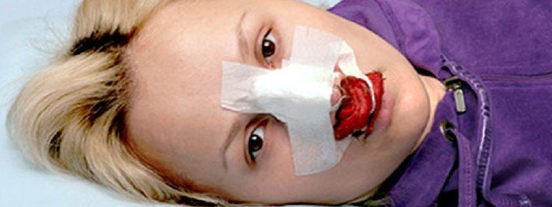 خونریزی بعد از عمل بینی