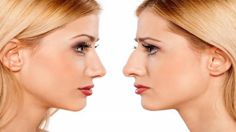 جراح بینی اصفهان   درمان انحراف بینی بدون جراحی