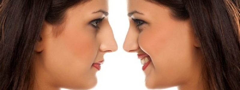 Reply to Questions exists no superset of Rhinoplasty (رینوپلاستی)