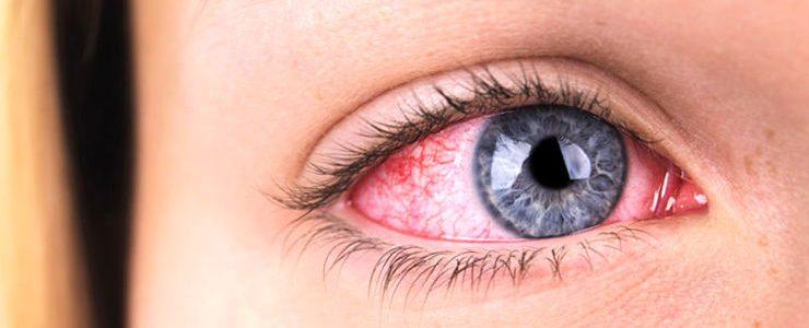 قرمزی چشم بعد از عمل بینی