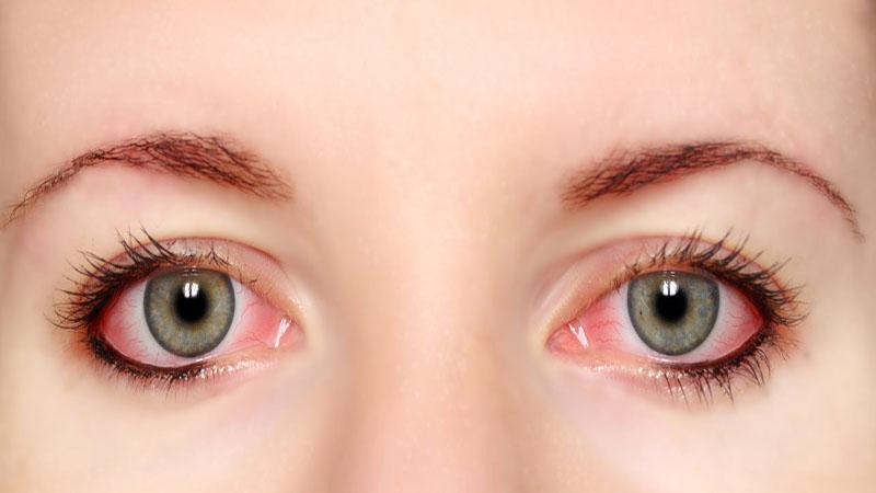 جراح بینی اصفهان | قرمزی چشم بعد از عمل بینی