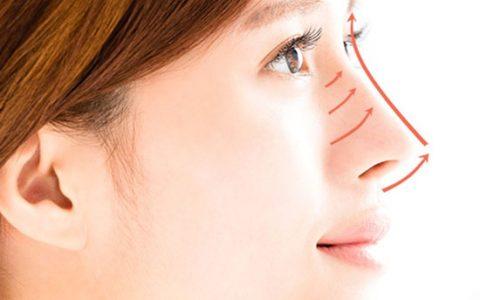 Chirurgie du nez avec une anesthésie générale