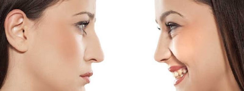 Rhinoplasty steps after surgery
