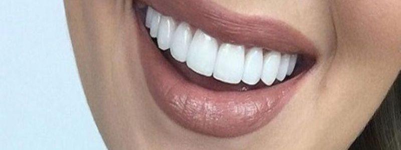 کامپوزیت دندان بعد از عمل بینی