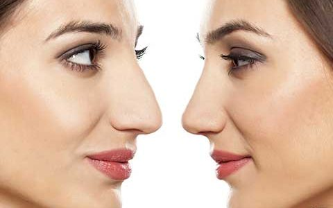 فاصله بین دو عمل بینی چقدر باید باشد؟