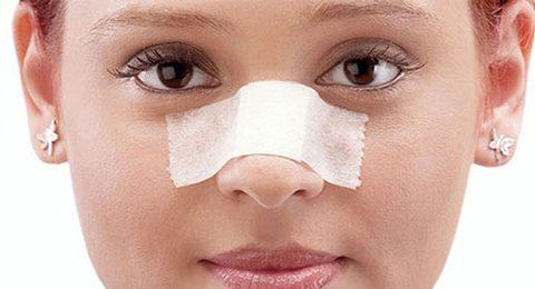 Quels sont les objectifs de la chirurgie nasale?,fa
