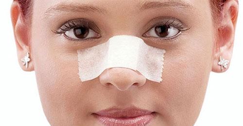 جراحیهای بینی با چه اهدافی انجام میگیرد؟