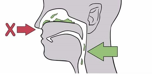 Nose and Septoplasty Surgery for Treating Pectoral Secretions,fa