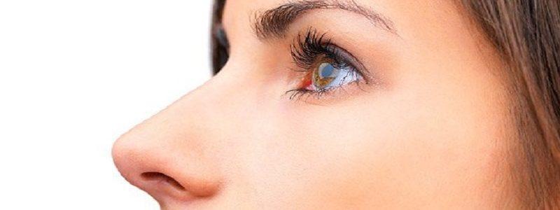 درمان افتادگی نوک بینی بعد از عمل بینی
