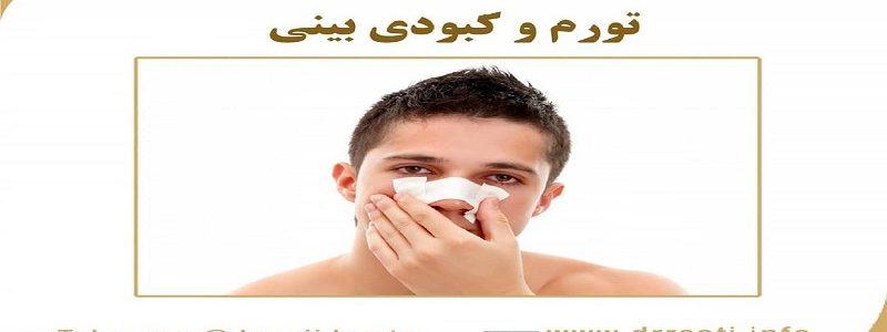 تورم و کبودی بینی