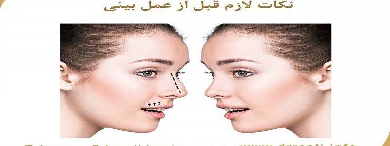 نکات لازم قبل از عمل بینی