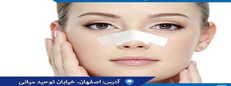 چه کسانی گزینه مناسبی برای جراحی بینی نیستند؟