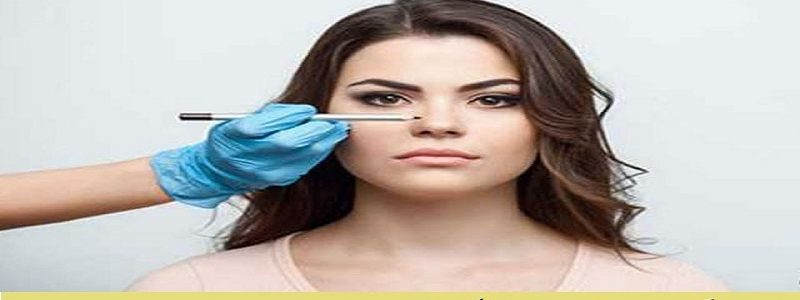 What is effective in one rhinoplasty?