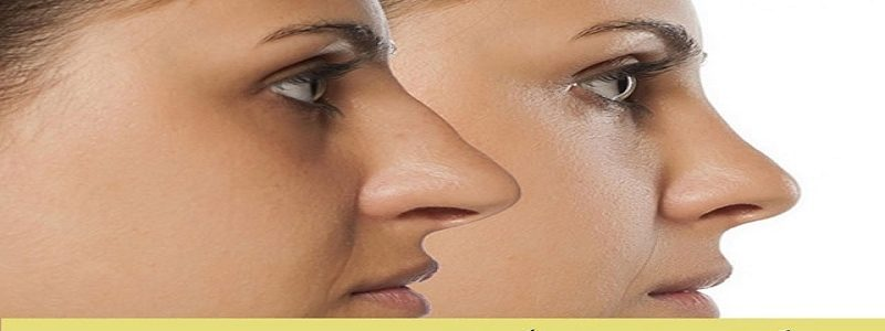 Aquiline nose surgery method is how?
