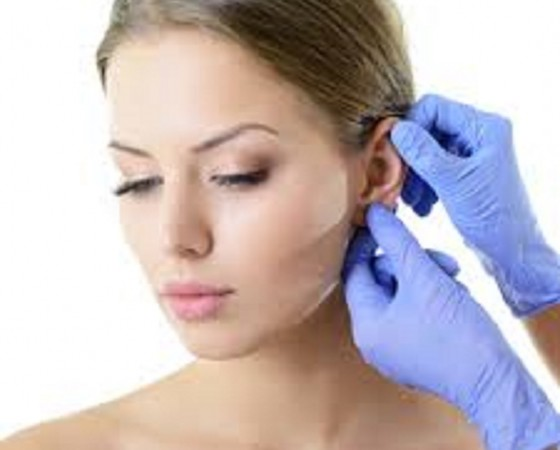 Prominent ear surgery