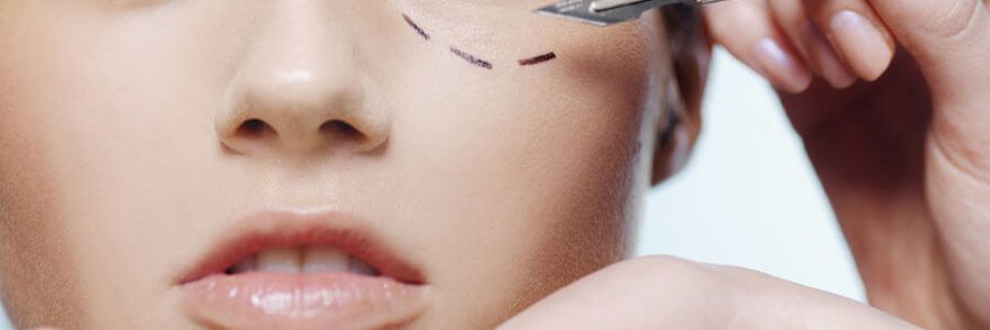 Who are candidates for eyelid surgery