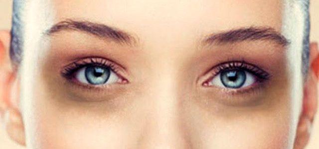 13 ways to eliminate black eye