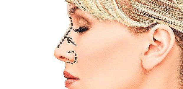 نکاتی درباره جراحی زیبایی بینی