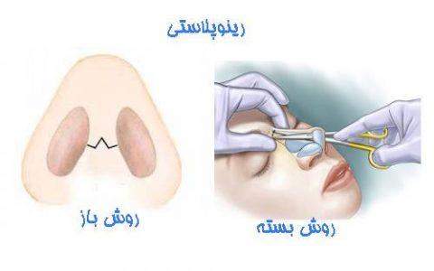 Les types de chirurgie du nez
